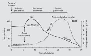 糖尿病性腎症の自然史の仮説