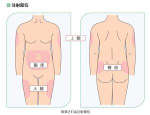 インスリンの注射部位