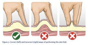 インスリン注射時の皮膚のつまみ方