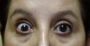 甲状腺眼症の例
